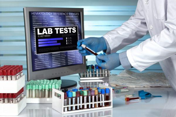 Lab Tests @ home