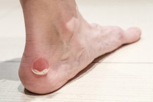Foot Care for Blisters in Diabetes