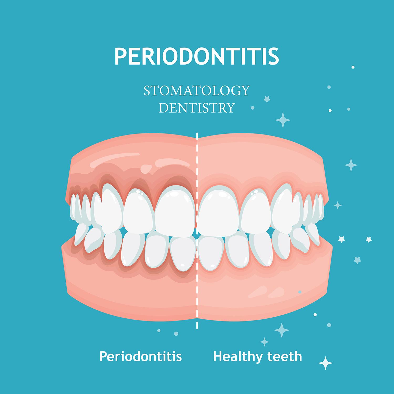 normal teeth vs. periodontitis