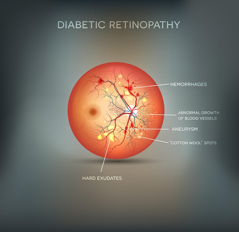 Illustration of diabetic retinopathy