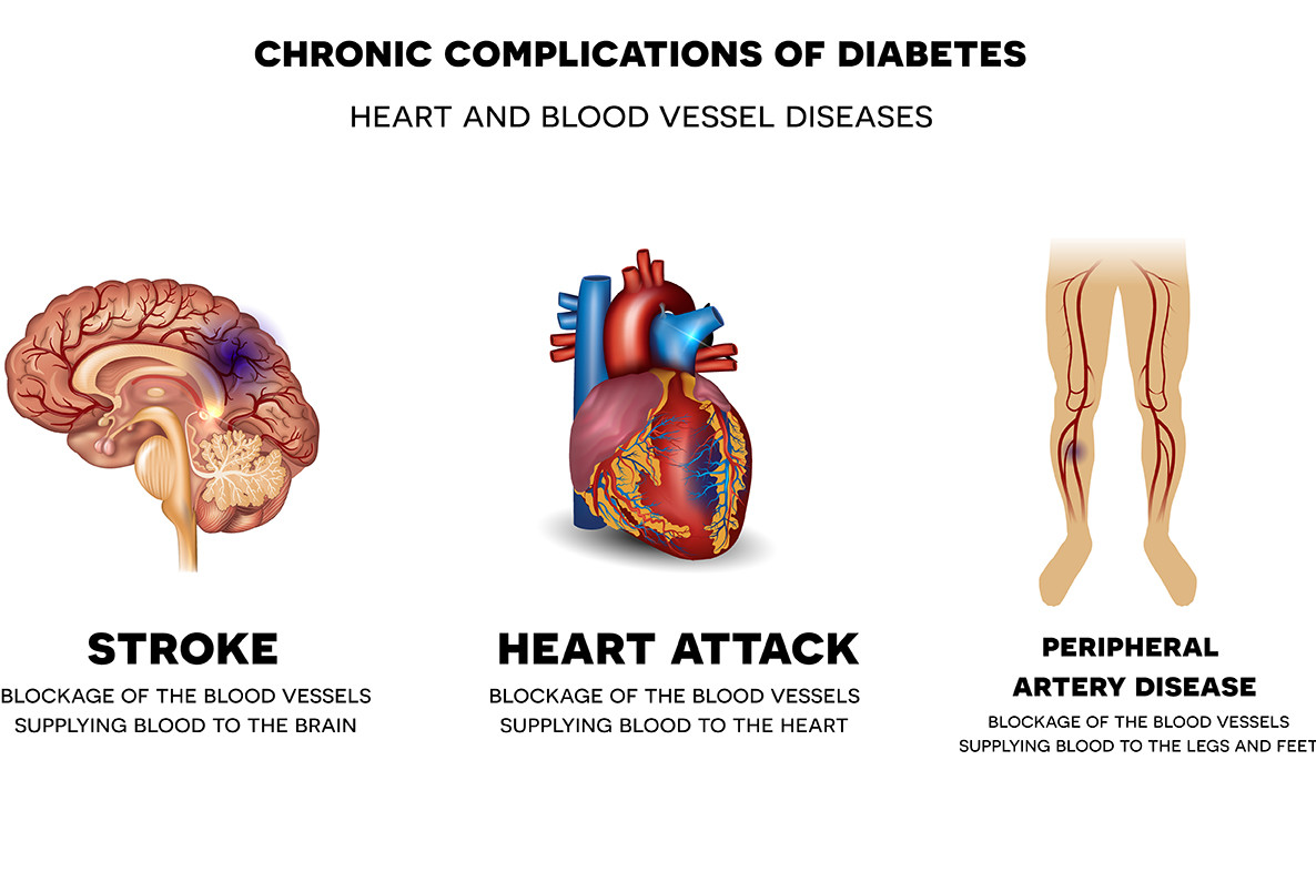 Heart attack, peripheral artery disease, stroke illustration
