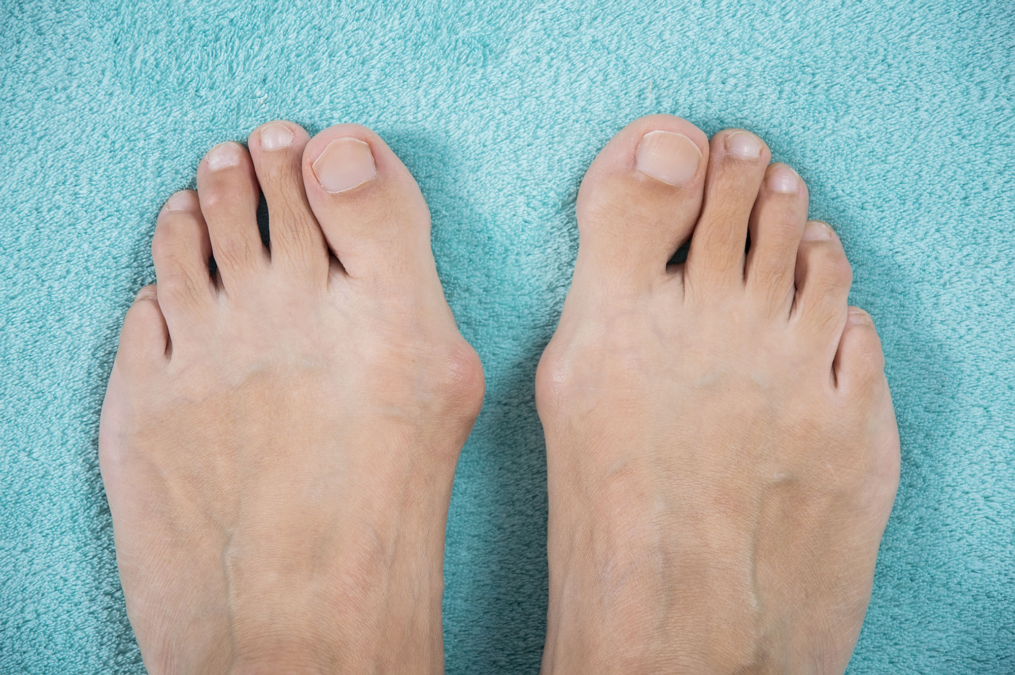 Bunions in Diabetes