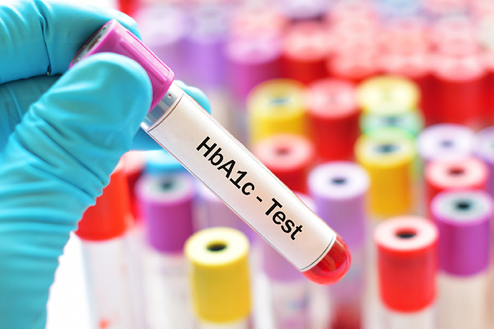 Test tube with HbA1c test written on it