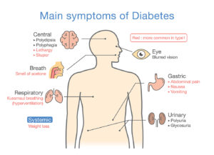Symptoms of type 2 diabetes