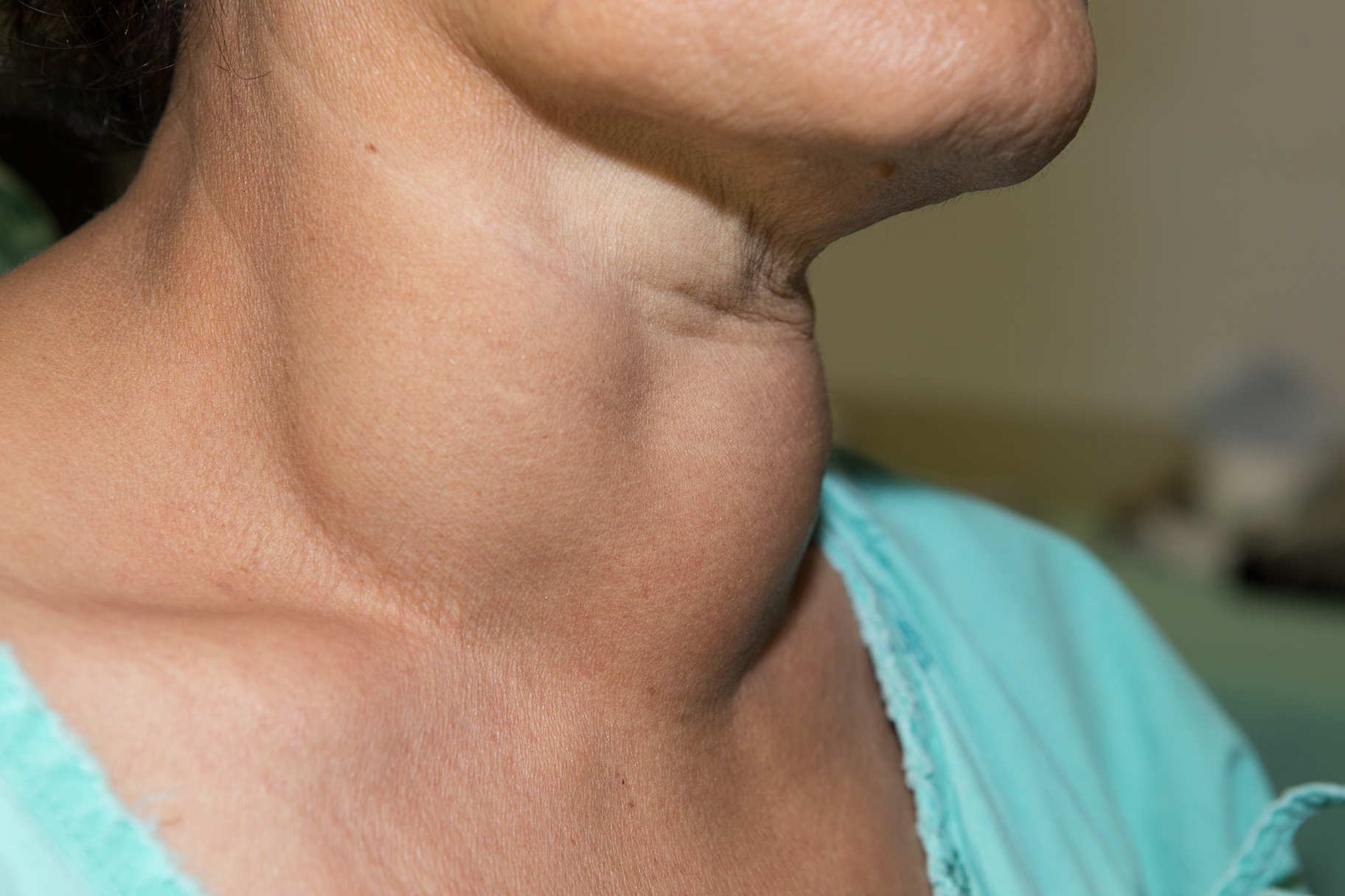 Goitrogenic foods to limit in Hypothyroidism