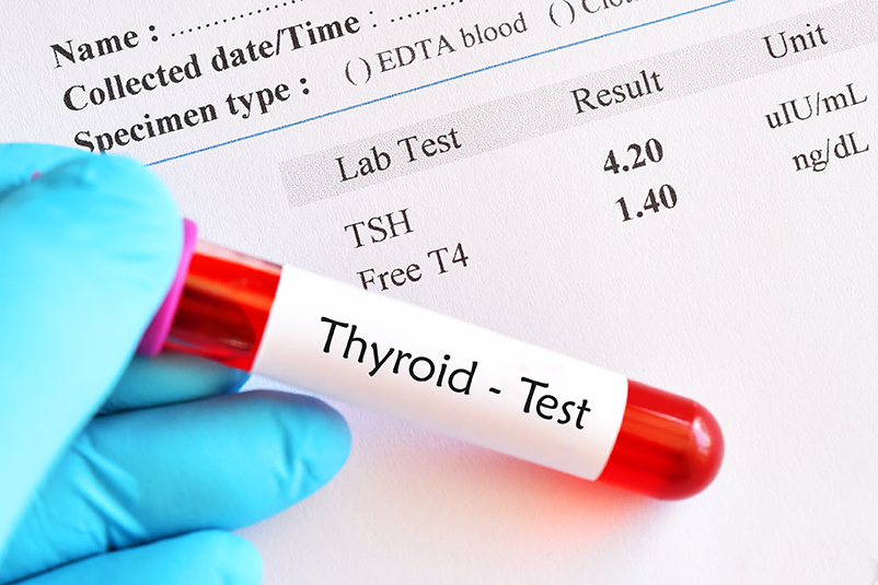 Thyroid Function Tests Hypothyroidism