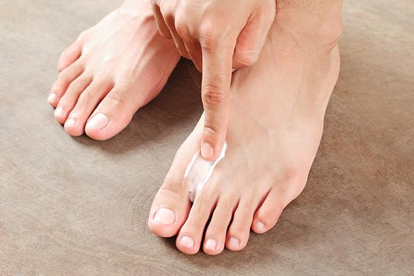 Diagnosis of athlete's foot in diabetes