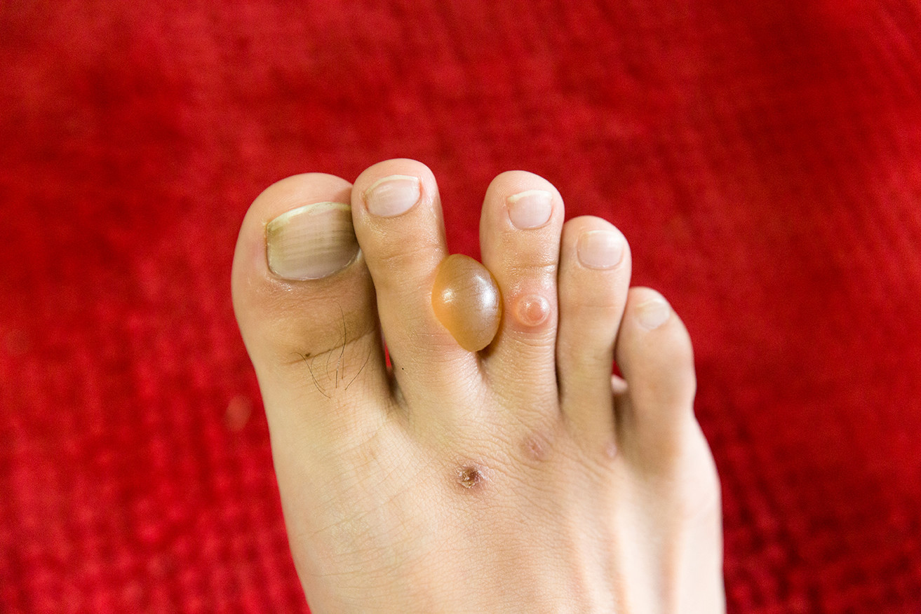 Diagnosis of diabetic blisters on feet