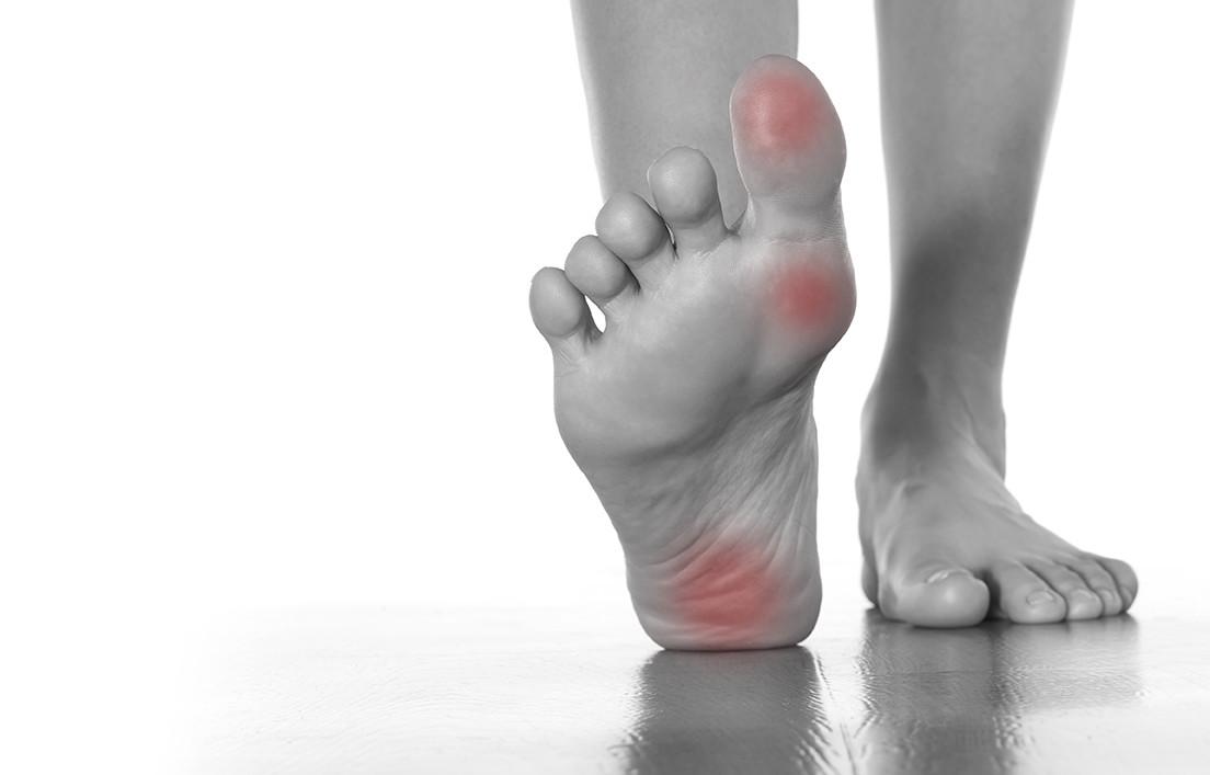 Diagnosis of foot corns in diabetes