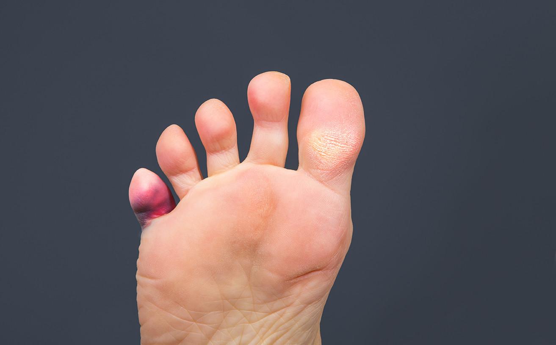 Symptoms of hammertoe in diabetes