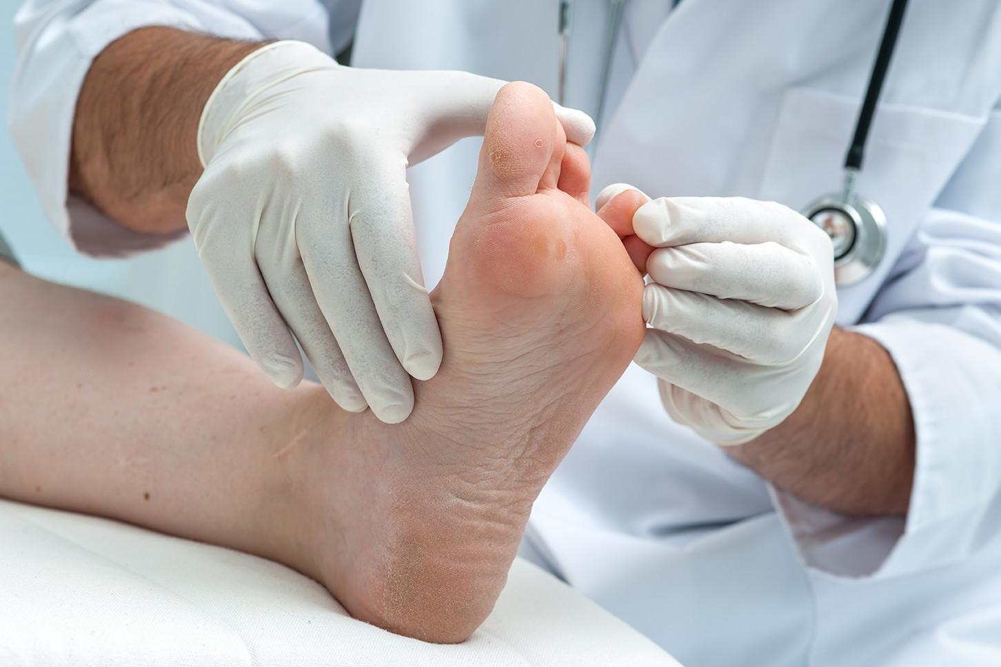 Diagnosis of diabetic foot