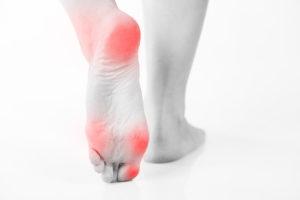Symptoms of foot calluses in diabetes