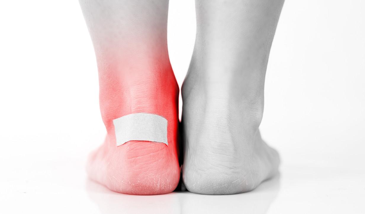 Symptoms of diabetic foot blisters