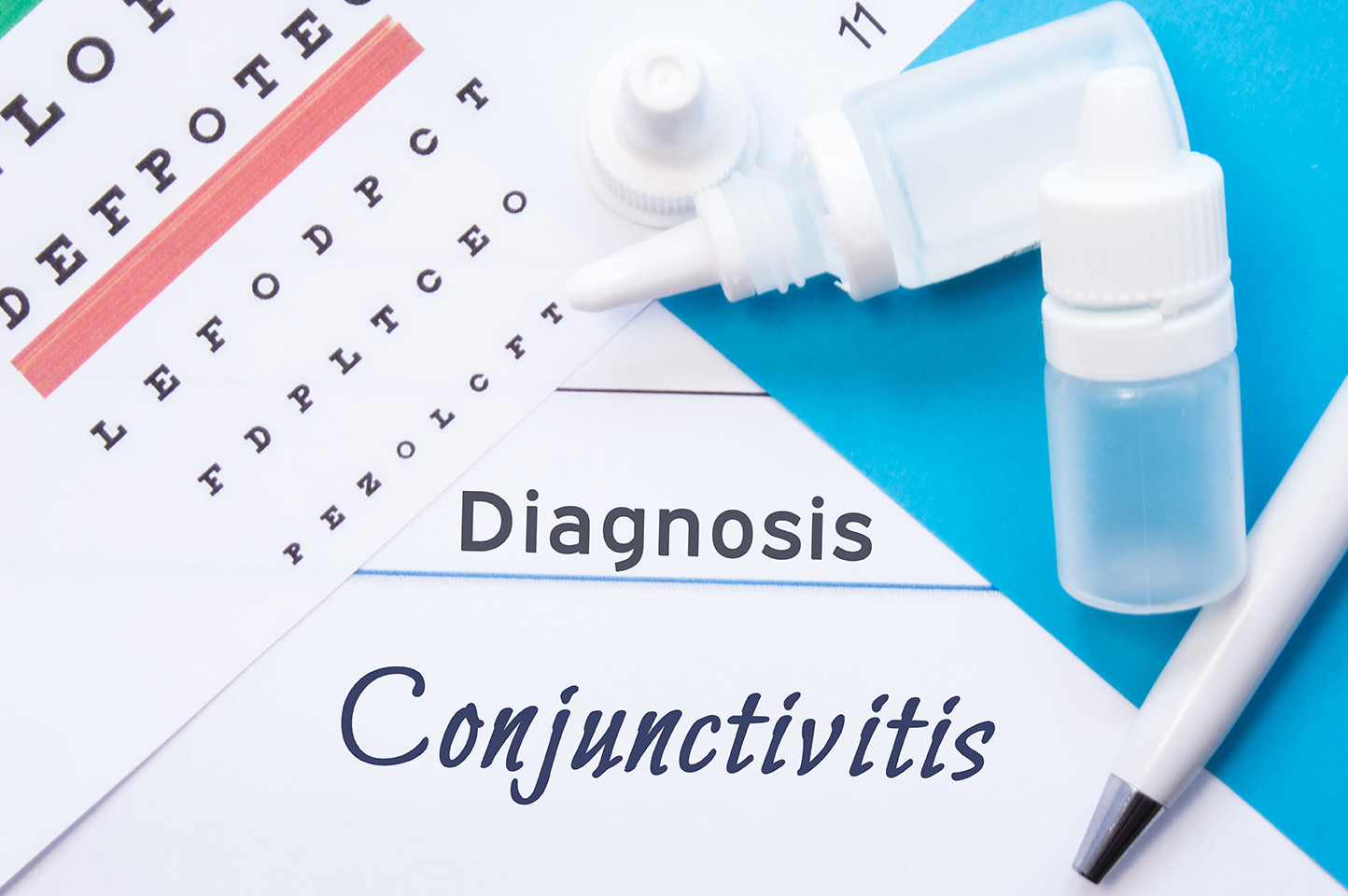 Diagnosis of conjunctival diseases