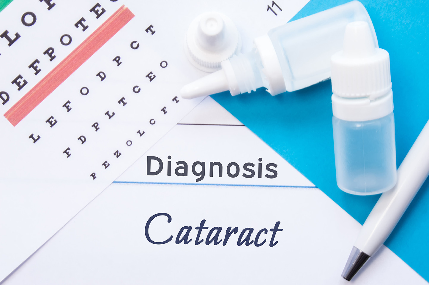 Diagnosis of diabetic cataracts