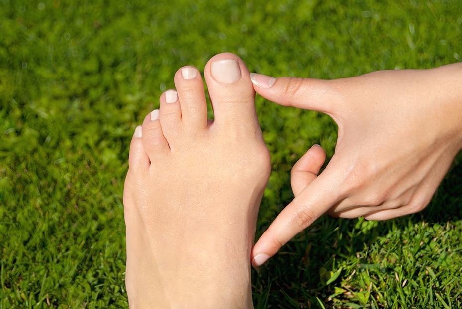 Symptoms of bunions in feet