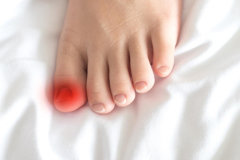 Diagnosis of ingrown nails in diabetes
