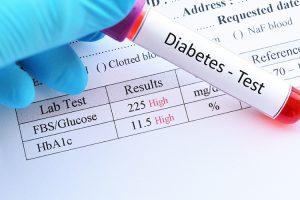 Diabetes Blood Tests